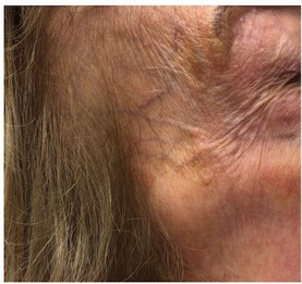 Forehead Veins treatment - vein center - vein doctors near me - Water's Edge Dermatology