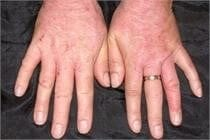 Allergic Contact Dermatitis Treatment - Water's Edge Dermatology - dermatologists near me