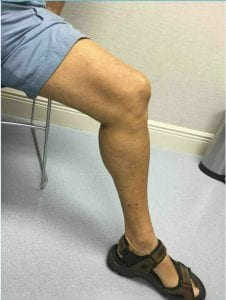 Varicose Veins treatment near me - Water's Edge Dermatology - vein doctors near me - vein specialists