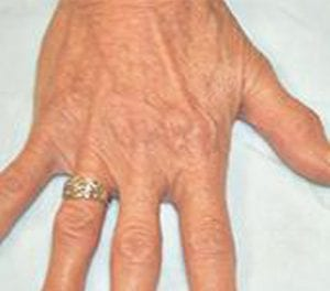 Hand Veins treatment - vein center - vein doctors near me - Water's Edge Dermatology