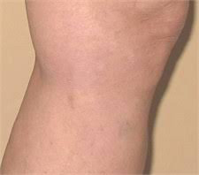 Spider Veins treatment - vein center near me - vein doctors in florida - Water's Edge Dermatology - Spider Veins removal