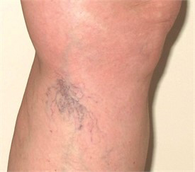 Spider Veins treatment - vein center near me - vein doctors in florida - Water's Edge Dermatology